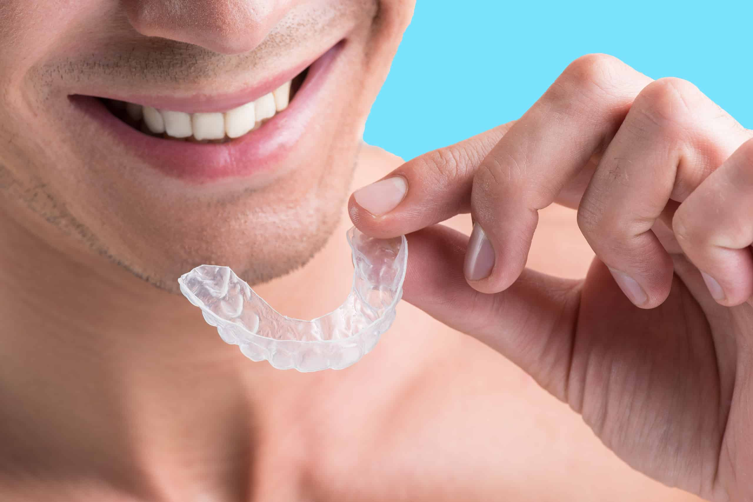 Man with clear aligner